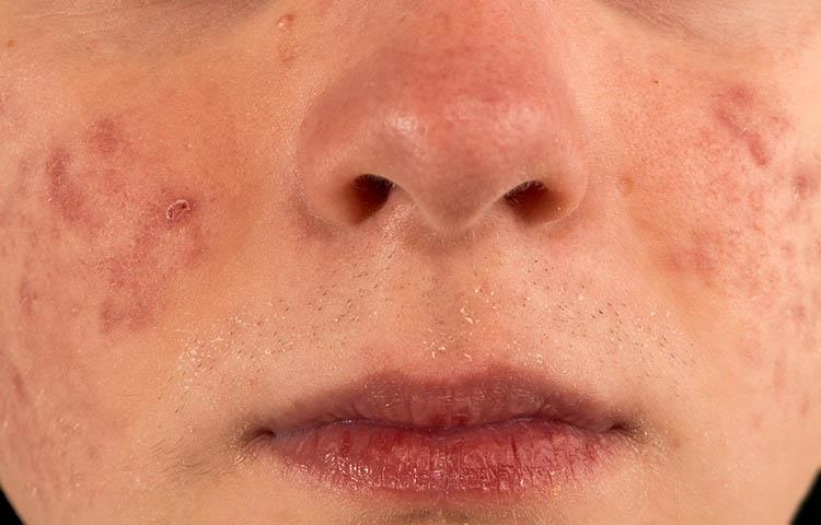 פנים של נער עם אקנה (פצעי בגרות)